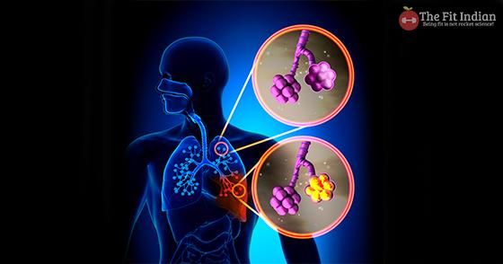 pneumonia reason for chest congestion